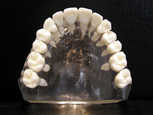 Forensic dentistry - Image: Upper jaw
