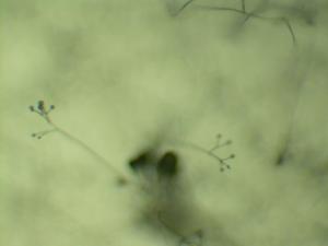 Verticillium - Verticillium conidiophores