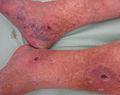 Периферна васкуларна болест.JPG