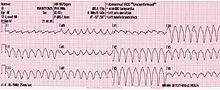 Frage 56 Wodurch ist eine multifokale ventrikulre