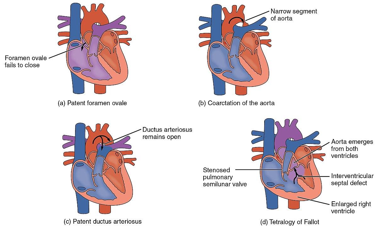 File15 Congenital Heart Defects.jpg   Wikimedia Commons