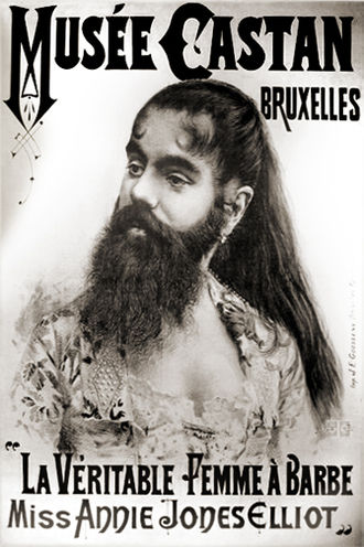 Bearded lady - Annie Jones toured with P.T. Barnum's circus in the 19th century.