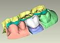 CAD Modellation der Infix®-Krone2.jpg