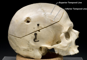 Temporal line - Side view of the skull.  Temporal lines labeled at top right.