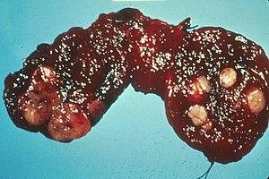 Human thyroid with cancer nodules