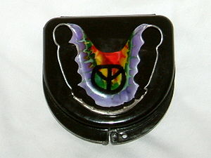 Retainer (orthodontics) - The underneath surface of an upper Wrap Around Hawley retainer resting on top of a retainer case
