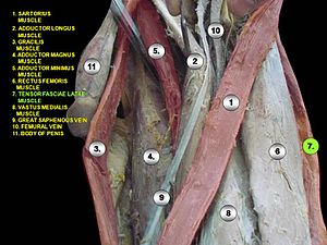 Tensor fasciae latae muscle