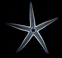 Starfish X-Ray, Category:Starfish Category:X-rays Radiogram
