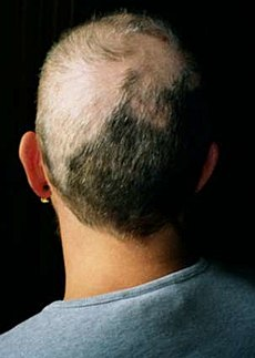 Hair pulled out scalp - 5 2