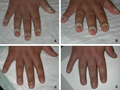 WIRA-Wiki-GH-014-Hand-warts-healing-with-wIRA.png