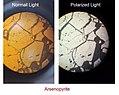 Arsenopyrite Under normal and polarized light.jpg