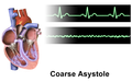 Asystole Coarse.png