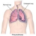 Blausen 0742 Pneumothorax.png