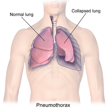 Illustration depicting a collapsed lung or Pneumothorax