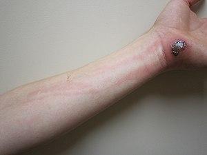 lymphangitis - wikipedia, Skeleton