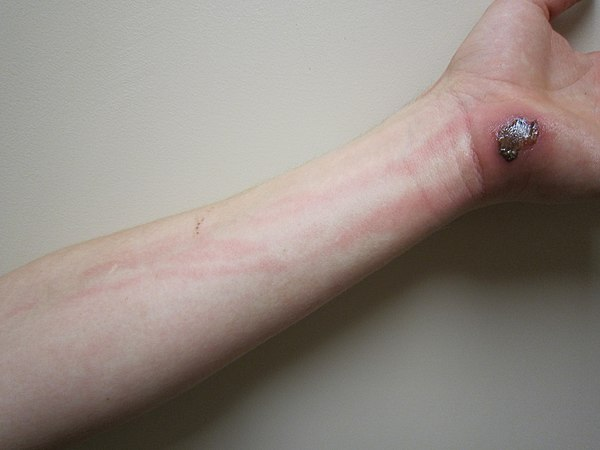lymphangitis - wikiwand, Skeleton