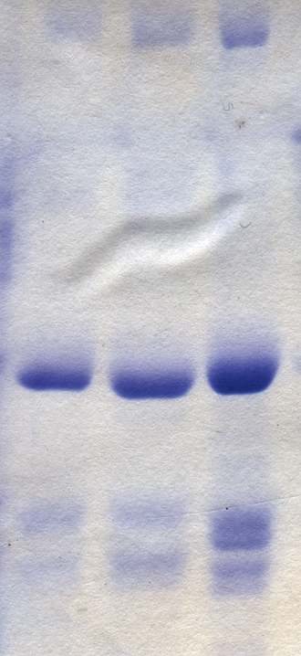 Polyacrylamide gel electrophoresis - PAGE of rotavirus proteins stained with Coomassie blue