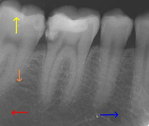 Glossary of dentistry - This X-ray film depicts some of the teeth in the lower right quadrant.  The arrows point in the following directions: distal ←, mesial →, coronal ↑, apical ↓.