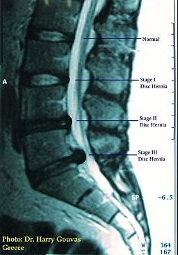 Disc Hernias I-II-III Stage
