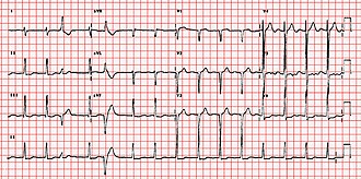 Right axis deviation - ECG showing right axis deviation