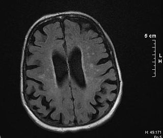 Binswangers disease form of small vessel vascular dementia caused by damage to the white brain matter