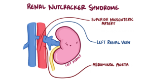 Nutcracker Syndrome Anatomy.png