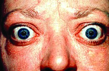 Thyroid Disease Wikipedia