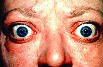 Exophthalmos is the eye bulging that may be seen with Graves Disease, one of the major causes of hyperthyroidism OSC Microbio 19 02 exophth.jpg