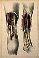 Popliteal arteries; two figures showing dissections of the l Wellcome V0008163.jpg