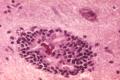 Rabies encephalitis PHIL 3368.png