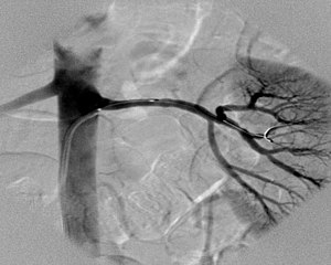 Renal artery angiography in a patient with fibromuscular dysplasia (2).jpg