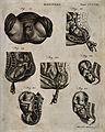 Seven diagrams illustrating the birth of a child with the us Wellcome V0014935.jpg