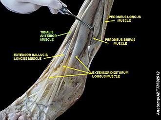 Anterior tibial artery - Image: Slide 18wwww