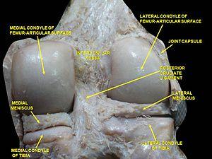 Medial condyle of femur - Image: Slide 2bib