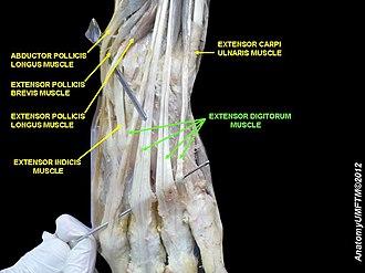 Extensor digitorum muscle - Image: Slide 5RRRRR