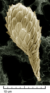 High magnification SEM image of a single Synura cell: It is covered with about 50 delicate, oval scales.