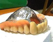 Oberkiefer ohne gaumenplatte zahnprothese Gaumenfreie Prothese