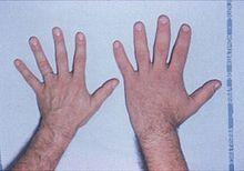 Hypofyse - Wikipedia
