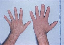 Acromegaly hands.JPEG