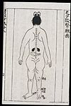 Acupuncture prohibitions for pregnancy, Chinese-Japanese Wellcome L0039994.jpg