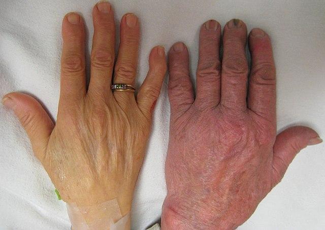 Анемия конечностей рук и ног