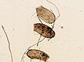 Cimex lectularius (YPM IZ 093698).jpeg