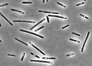 Clostridium perfringens sporulating