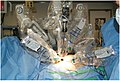 External-aspect-of-the-operative-field-DaVinci-robotic-system-docked-to-the-patient.jpg