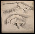 Female and male hands (above and below respectively). Drawin Wellcome V0009266.jpg