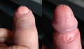 Foreskin retraction.png