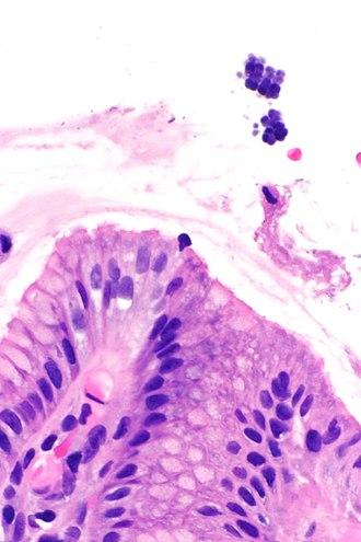 Sarcina (genus) - Gastric mucosa and sarcina. H&E stain.