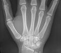 Handwurzel und Mittelhand 19j weiblich.png