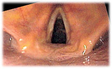 View of the glottis as seen during laryngoscopy