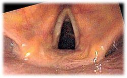 Larynx endo 2.jpg
